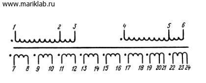 Трансформатор разработан для работы в стереофонических (полупроводниковых) усилителях низкой частоты